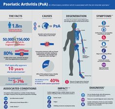 Psoriatic arthritis affects up to one in five people with psoriasis. This type of arthritis is unpredictable, but flare-ups can be usually be managed with treatment.  Find out more about the condition, its causes symptoms and impacts in our infographic below and on www.bjfm.co.uk
