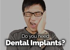 A dental implant can be perfect for a patient who has lost a teeth. It can be of any reason, might be any injury or a gum disease.