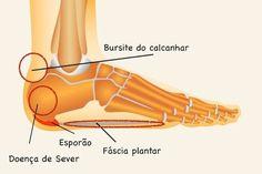 Tratamentul ?i prevenirea osteocondrozei