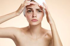 Acne sores do? The big problem for people who love skin !!!