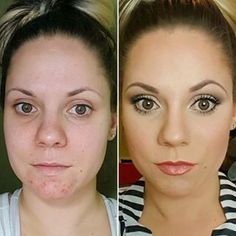 Nice before and after. All younique products. Need to try it