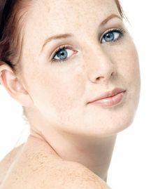 FOTOTIPO I: las pieles más delicadas. #Piel muy blanca y fina, con tendencia a las pecas, ojos claros. Tu piel reacciona con facilidad: #dermatitis, enrojecimientos, quemaduras, picores, etc. Similar a la de un bebé en cuanto a defensas, por lo que los cuidados son similares.  LO IDEAL: bronceadores sin sol, mismo resultado sin riesgo y no sufrirás. Empieza con nuestra Leche Bronceado Progresivo.  LO ACONSEJABLE: ante cualquier exposición al sol, protégete mucho toda la piel con factor solar…