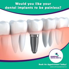 Fixed with a solid titanium screw, these innovative #DentalImplants are more successful than dentures, bridges, and crowns. Get the smile you want, step into our clinic today!  #DentalImplantAhmedabad #DentalImplantClinic