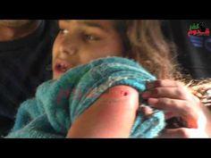 جيش الاحتلال يستهدف طفلة بالرصاص الحي في كفرفدوم 22_1_2016