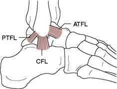 ligamentum talofibulare anterius