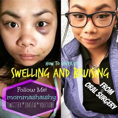 STAY TUNED! I'll be posting a video on how I covered up my bruised and swollen face from my oral surgery! Color correcting is the answer!! Follow me:  @mommashaishy  @mommashaishy  @mommashaishy  sharmaine.cordero@gmail.com #coverup #bruises #oralsurgery #makeupaddict #makeupjunkie #itsmagic #ColorCorrecting #youtube #coverfx by mommashaishy Our Oral Surgery Page: http://www.myimagedental.com/services/oral-surgery/ Google My Business: https://plus.google.com/ImageDentalStockton/about Our…