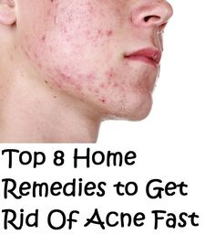 Acne is a very common problem that is faced by trillions of people across the world of all ages. From mild to severe, cases of acne cause ...