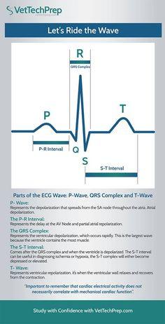 Infographic: Parts of the ECG Wave - Nursing Meme - Infographic: Parts of the ECG Wave Pharmacology Nursing, Icu Nursing, Funny Nursing, Nursing Tips, Vet Tech Student, Nursing Students, Student Memes, Medical Students, Nclex