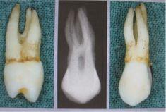 Molarisering (premolar).  Ukj: 2. premolar med M og D rot Okj: 1. premolar med B og én P rot