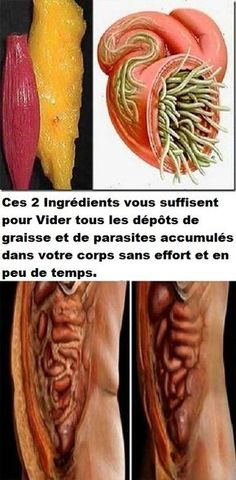 Just Use These 2 Ingredients To Empty All Deposits of Fat and Parasites Of Your Body Without Effort - Healthy Page 4 You Herbal Remedies, Health Remedies, Natural Remedies, Health And Beauty, Health And Wellness, Health Fitness, Get Healthy, Healthy Tips, Salud Natural