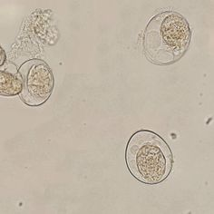 Sunday Parasitology Quiz - Can you identify these particles?