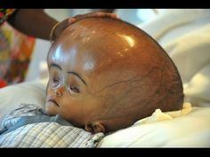 10 Terrifying Rare Birth Diseases That You've Never Heard Of