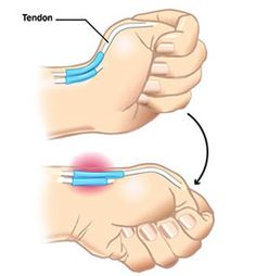 De Quervain's Syndrome: Tendons of the Extensor Pollicis Brevis and Abductor Pollicis Longus muscles. Both provide radial abduction, as opposed to palmar abduction.The tendons run, as do all of the tendons passing the wrist, in synovial sheaths.