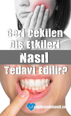 Geri Çekilen Diş Etleri #Nasıl #tedavi edilir? #dişetleri #doğaltedaviler #dişetisorunları #dişetihastalıkları #sağlıkansiklopedi