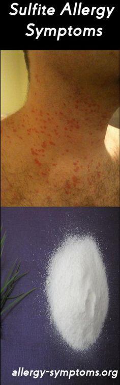 Sulfite Allergy Symptoms and Diagnosis #sulfite #sulfiteallergy #sulfiteallergysymptoms http://allergy-symptoms.org/sulfite-allergy/
