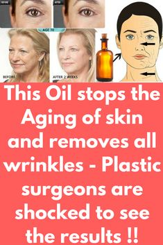 This Oil stops the Aging of skin and removes all wrinkles - Plastic surgeons are shocked to see the results ! This Oil stops the Aging of skin and removes all wrinkles - Plastic surgeons are shocked to see the results ! Many doctors and experts have Skin Tips, Skin Care Tips, Age Spots On Face, Vaseline Beauty Tips, Beauty Hacks For Teens, Prevent Wrinkles, Face Wrinkles, Skin Care Cream, Wrinkle Remover