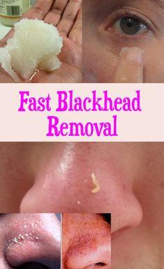 Fast Blackheads Removal - Peek-IT