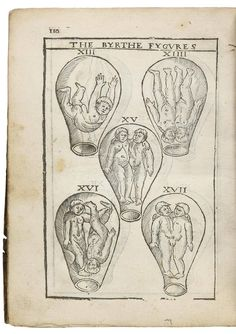 The birth of Mankinde, otherwise named The Vvoman's Booke. Set foorth in English by Thomas Raynalde…and by him corrected, and augmented… - Price Estimate: $10000 - $15000