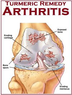 Tips to use Turmeric for Arthritis