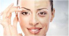 Kako ukloniti bore na licu,oko očiju,oko obrva,na vratu,na dekolteu. Kako se pravi prirodna maska protiv bora od meda,avokada,kokosovog ulja