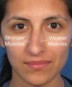 Cardio Trek - Toronto Personal Trainer: Fixing a Crooked Nose using Nose Exercises