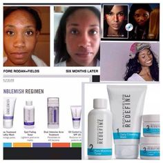 Here is actress/model/entrepreneur, AJARAE COLEMAN who is a Rodan + Fields consultant. Look at her amazing BEFORE/AFTER photos. She is now an Independent Consultant for Rodan + Fields Dermatologists. https://dawnmrogers.myrandf.com