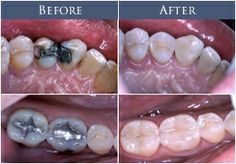 Before: Silver amalgam fillings After: Tooth colored composites