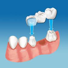Behnam Aghabeigi has more than 25 years of experience in training and practice of Oral Surgery and Oral Implantology with a special interest in advanced bone grafting techniques and sinus augmentation. For more information about Behnam Aghabeigi free visit here : http://benaghabeigi.com