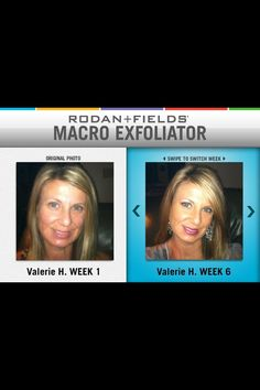 Rodan + Fields before and after.  https://ckrause.myrandf.com/