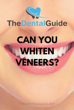 Can You Whiten Veneers? - The Dental Guide