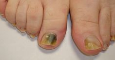 Todas las personas en algún momento de nuestras vidas, nos vemos afectadas por algún tipo de hongo en nuestras uñas. Una de las razones principales son la humedad de nuestros pies y manos. Luego de tomar un baño, tenemos que secar muy bien nuestros pies para evitar que se puedan desarrollar hongos en nuestros dedos y uñas.