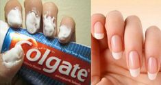 Did you know that toothpaste can help you do so much more than just cleaning your teeth? Continue reading the article below to learn 20 amazing toothpaste tricks! Silver polish Silver cleaning costs a lot, but Grow Nails Faster, How To Grow Nails, Grow Long Nails, Nail Growth Faster, Nail Growth Tips, Uses For Toothpaste, Tips Belleza, How To Clean Carpet, Nail Care