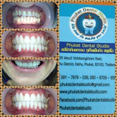 Porcelain Veneer by Empress/E-Max @Island Phuket dental studio