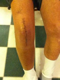 apa la genunchi operatie
