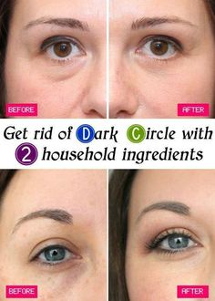 How to Conceal Dark Undereye Circles