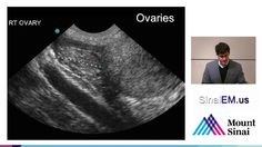 Introduction to pelvic ultrasound for the evaluation of ectopic pregnancy by Bret Nelson, MD, RDMS, FACEP. Department of Emergency Medicine, Mount Sinai Scho. Ectopic Pregnancy, Pregnancy Test, Fetus Development, Emergency Medicine, Ultrasound, Nursing, Lost, Baby