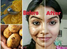 Przecieranie twarzy ziemniakiem – nie uwierzysz co to daje!
