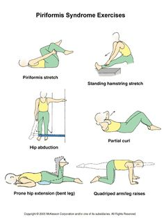 Exercises For Piriformis Syndrome Symptoms | Piriformis Syndrome