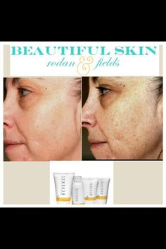 Rodan + Fields REVERSE actually reverses effects of sun damage, revealing brighter, more youthful looking skin.  It's too hot to wear makeup.  www.louisetgrant.myrandf.com