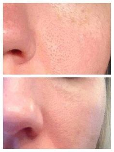Using Rodan + Fields #UNBLEMISH Regimen during the day and #REDEFINE at night, her pores shrank and the blackheads disappeared!  Backed with a 60-day money back guarantee, there is nothing to lose--only great skin to  gain. Message me for more information on how to receive 10% off and free shipping!