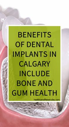 Benefits Of Dental Implants In Calgary Include Bone And Gum Health – Healthy And Fit Every Day Gum Health, Health Tips, Health And Wellness, Health Care, Health Benefits, Herbal Cure, Herbal Remedies, Health Remedies, Natural Teething Remedies