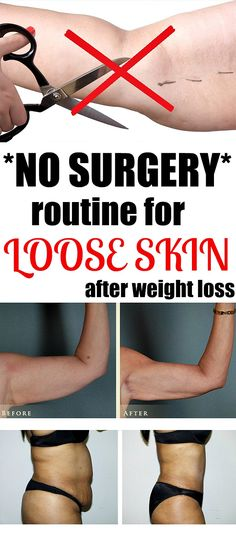 Simple Routine for Loose Skin after Weight Loss - Just Healthy Tricks