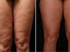How to Get Rid of Cellulite on Legs? How to get rid of cellulite on legs? Home remedies for cellulite on legs. Treat cellulite on legs fast and naturally. Ways to cure cellulite on thighs. Cellulite Scrub, Cellulite Remedies, Reduce Cellulite, Thigh Cellulite, Cellulite Cream, Tips Belleza, Natural Home Remedies, Anti Cellulite, Scrubs