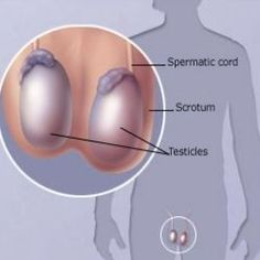 Causes And Treatment Of Testicular Cancer