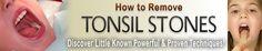 How to Prevent Tonsil Stones: 5 Key Secrets. http://banishtonsilstones.com/tonsilstonesremoval/?hop=0