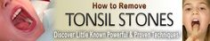 How to Prevent Tonsil Stones: 5 Key Secrets. http://banishtonsilstones.com/tonsilstonesremoval/?hop=0