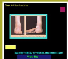Edema And Hypothyroidism 142835 - Hypothyroidism Revolution!