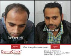 Awareness about hair transplantation as an effective way of dealing with the hair loss problem has increased manifolds in recent past. Whenever a sophisticated treatment process becomes accessible to people at large, it gives rise to many queries.