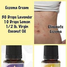 I cant wait to try this! I usually use extra virgin olive oil with orange essential oils for my Eczema. This looks like it might work as well!