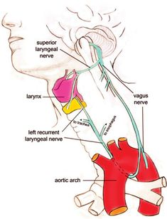 The vagus nerve is one of 12 pairs of nerves that come off the lower part of the brain called the brainstem. It is the tenth in line and therefore also called the tenth cranial (or X) nerve.LRLN around aorta & up along trachea Nerve Anatomy, Craniosacral Therapy, Human Anatomy And Physiology, Anatomy Organs, Otto Schmidt, Vagus Nerve, Cranial Nerves, Medical Anatomy, Medical Science